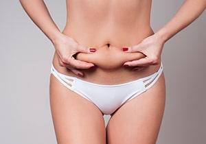 Abdominoplastie - chirurgie de l'abdomen