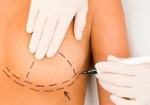 Réduction mammaire - hypertrophie mammaire