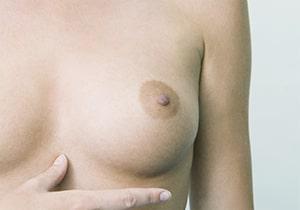 Chirurgie de l'aréole et des mamelons